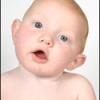 FISIOTERAPIA INFANTIL EN LA TORTICOLIS CONGENITA